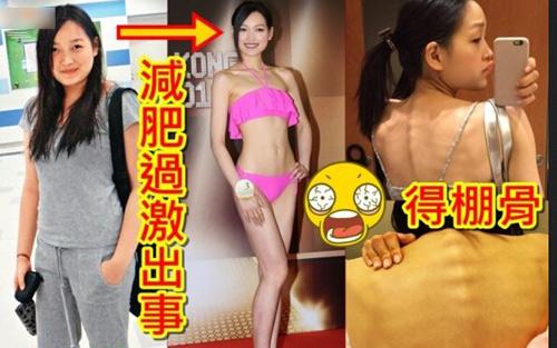 Thí sinh Hoa hậu Hong Kong gầy như bộ xương