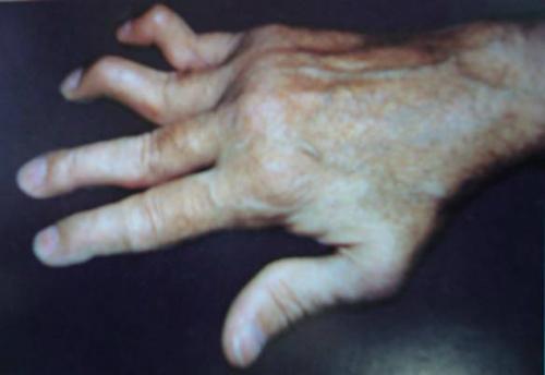 Phát hiện sớm viêm khớp dạng thấp bạn nên biết