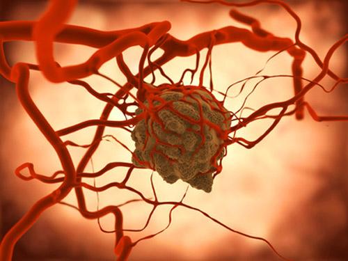 Tranh cãi ung thư do gene hay lối sống bạn có biết?
