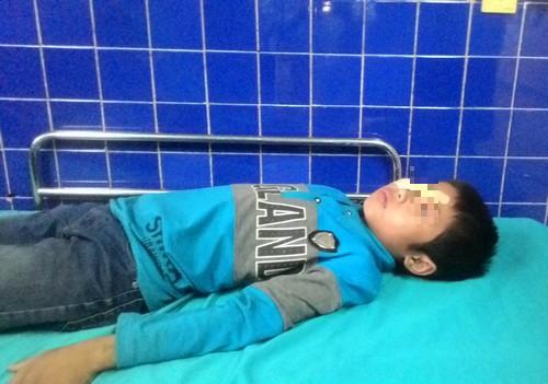 Cậu bé 11 tuổi nguy cơ hỏng mắt bởi trò nghịch dại