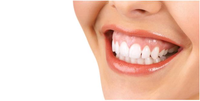 Nguyên nhân và phương pháp điều trị cười hở nướu