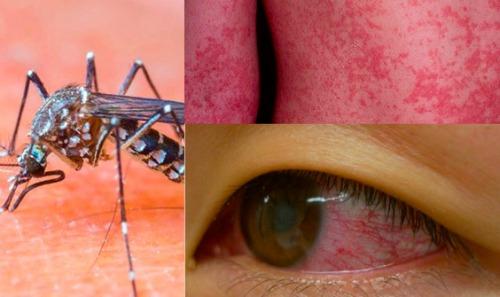 Khả năng bạn bị lây nhiễm virus Zika như thế nào
